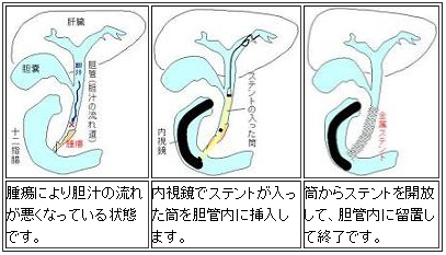胆管癌・膵癌などによる黄疸(悪性胆道狭窄)に対する内視鏡治療・経皮的治療